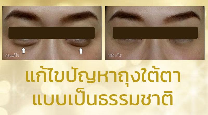 แก้ไขปัญหาถุงใต้ตา